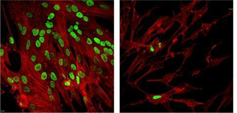 Herpesvirus study leads to discovery of broad-spectrum antiviral