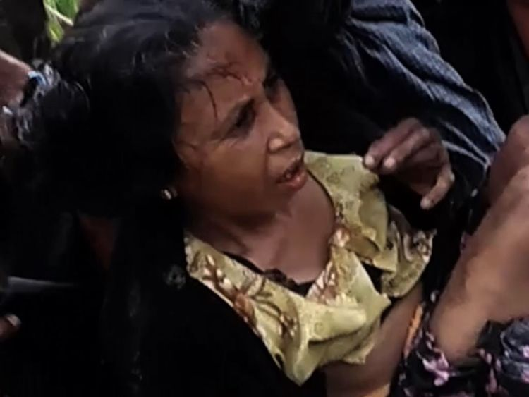 Sky News was told this woman had her legs blown off by a landmine