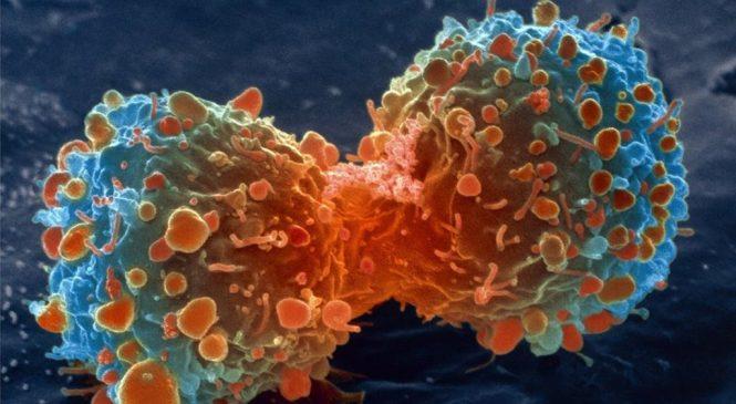 'Handful of changes' make cancer