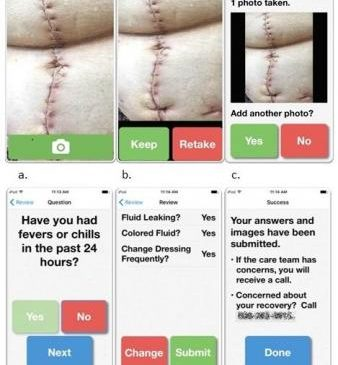 Smartphone app allows doctors, nurses to remotely monitor wound healing