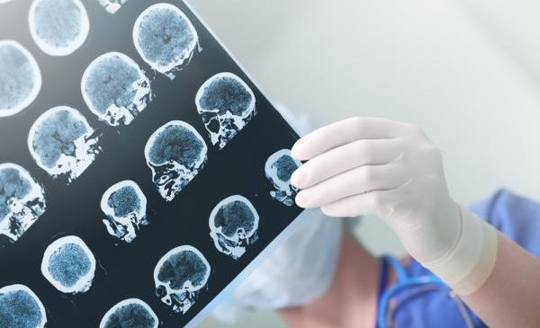 Brain scan, AI may help determine efficacy of OCD treatment