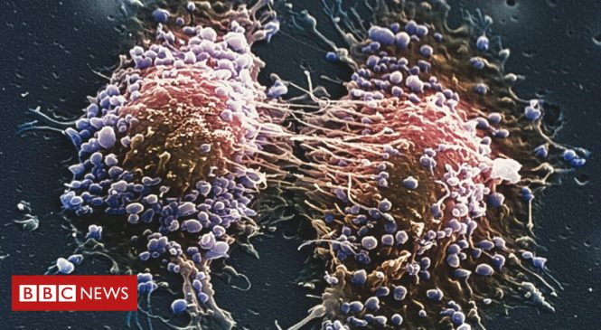 Prostate cancer: Four in 10 cases diagnosed late, charity says