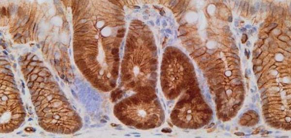 Antifungal drug eliminates dormant bowel cancer cells in mice