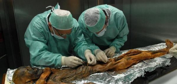 5,300-year-old iceman's last meal was remarkably high in fat