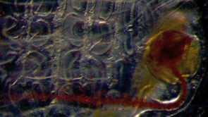 Sea squirts provide insights into gut defense evolution
