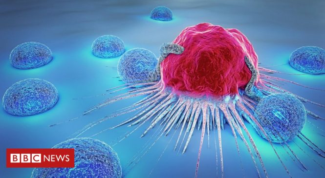 Artificial intelligence used to predict cancer growth