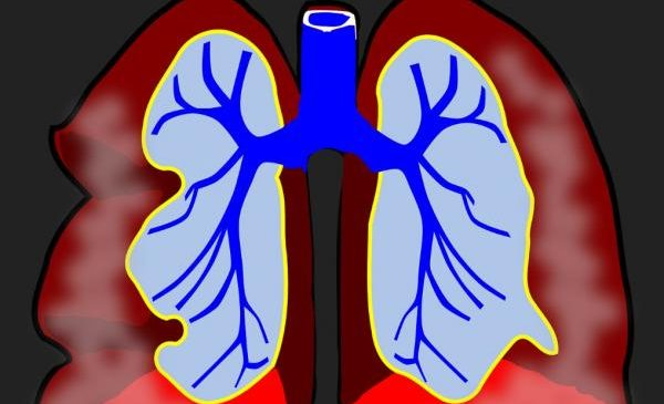 Excessive airway nerves linked to severe asthma in study