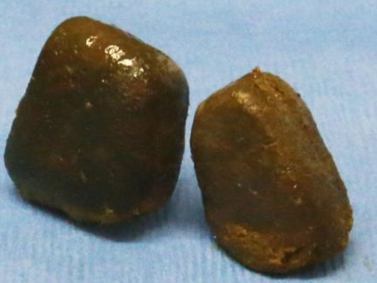 Wombats' cube poo mystery may have been solved