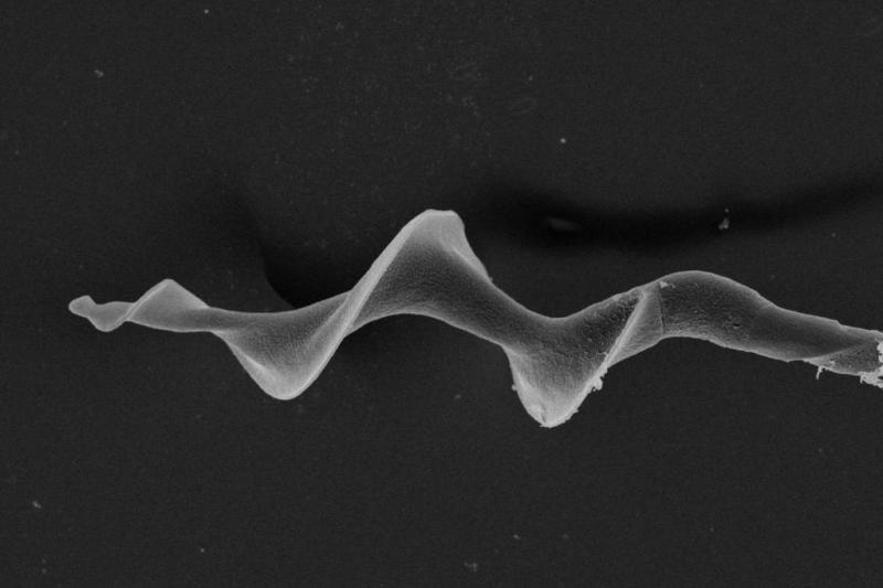 Screw-shaped bird sperm swims faster