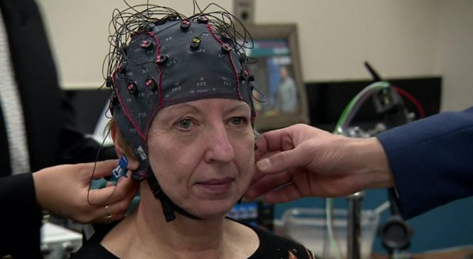 Parkinson's results beyond researchers' wildest dreams