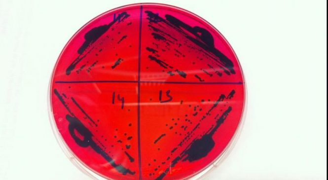 Antibiotic-resistant salmonella strain moves from China to U.S.