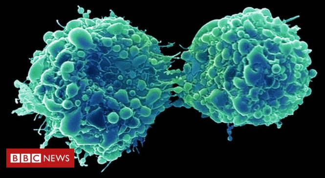 Bladder cancer 'attacked and killed by common cold virus'
