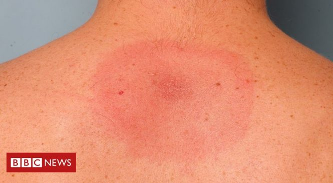 Lyme disease: Older white women 'at highest risk'