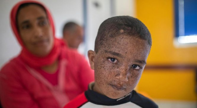 When light is lethal: Moroccans struggle with skin disorder