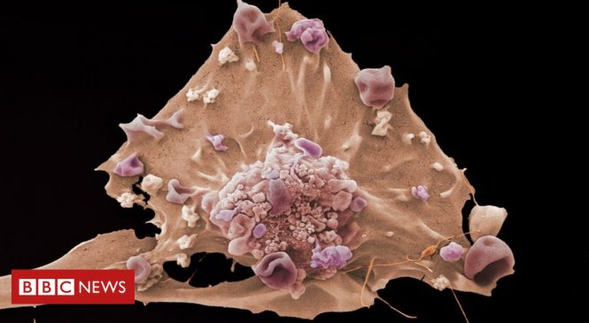 Cancer research: Scientists seek clues to how disease 'is born'