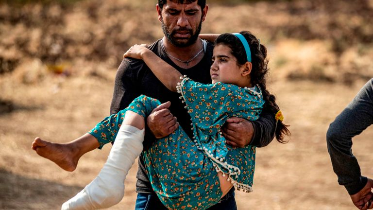 A Syrian girl injured by Turkish bombardment on Ras Al Ain is carried away from  hospital