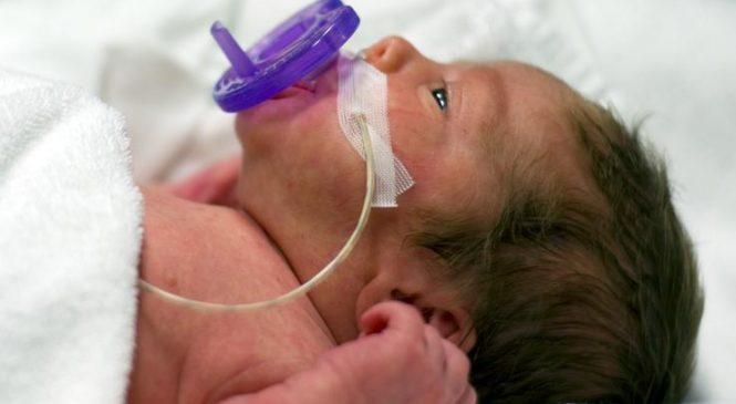 New findings may help premature babies breathe easier