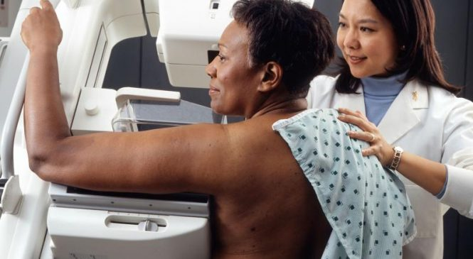 Less than half of women in their 40s screened for breast cancer each year