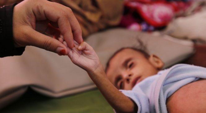 UNICEF: Millions of Yemeni children on 'brink of starvation'