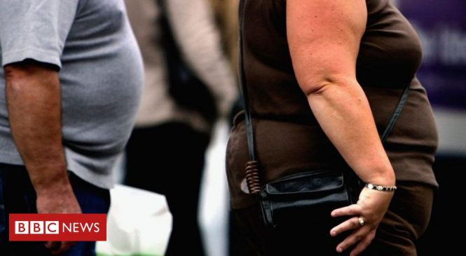 Coronavirus: Obesity increases risks from Covid-19, experts say