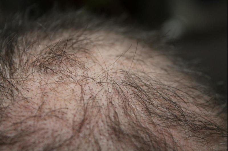 Study: Topical minoxidil reverses hair loss caused by radiation for brain, head, neck cancers