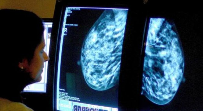 Breast cancer screening from the age of 40 could save hundreds of lives