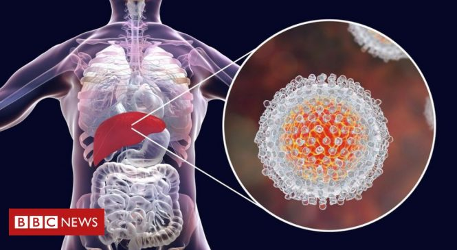Nobel Prize for Medicine goes to Hepatitis C discovery