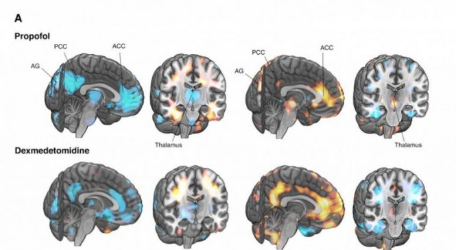 Scientists identify brain signals of fading consciousness during anesthesia, sleep