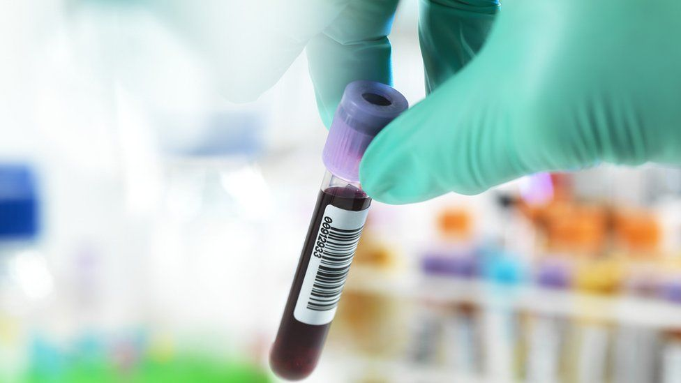 Covid vaccine impact revealed in over-80s blood tests