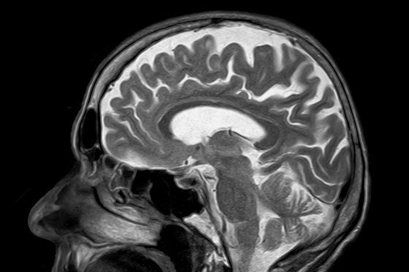 Study: Older adults with history of head injuries show decreased cognitive function